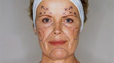 Schönheitschirurgie in Tschechien