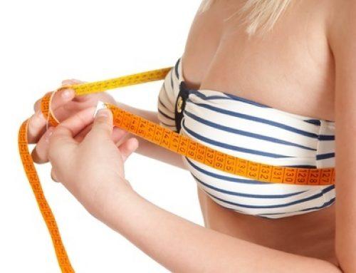 4 der häufigsten Fragen vor und nach einer Brust-OP